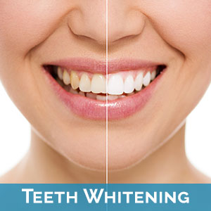 Teeth Whitening Historic Downtown Noblesville