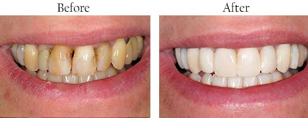 Noblesville Before and After Dental Implants